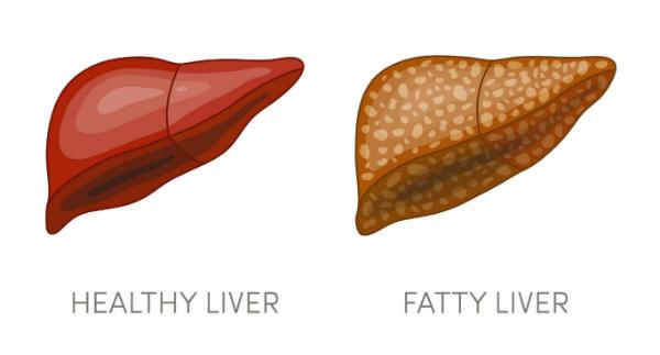 l-valine fatty liver